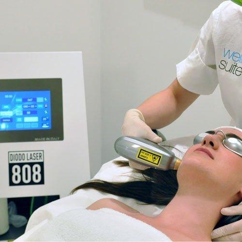 epilazione-diodo-laser
