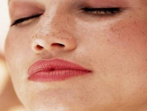 IPERPIGMENTAZIONE  Il sole ti ha macchiato la pelle?  Se al rientro dalle vacanz…