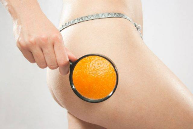 CELLULITE?NO GRAZIE!!!
