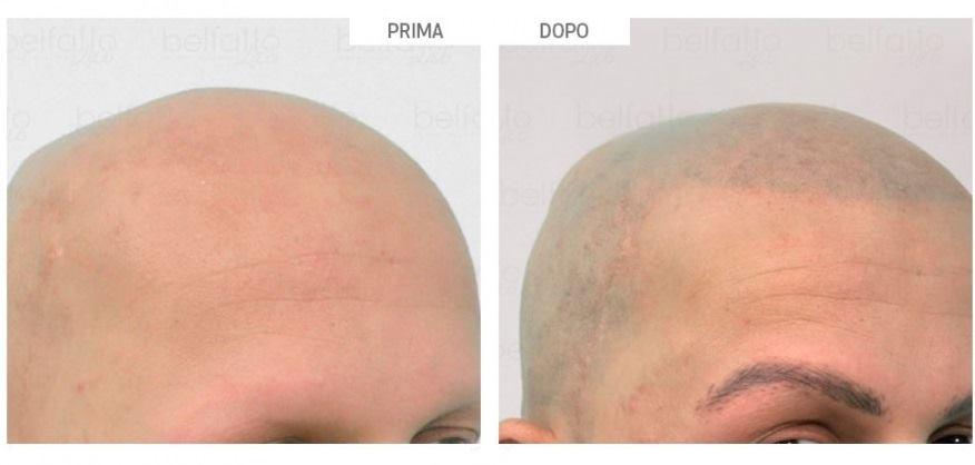 TRICOPIGMENTAZIONE: LA SOLUZIONE ALLA CALVIZIA   Perdere i capelli è un vero dra…