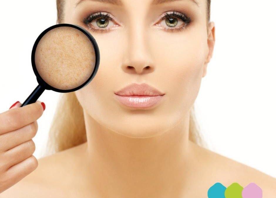𝐒𝐎𝐒 𝐌𝐀𝐂𝐂𝐇𝐈𝐄  Se sul tuo viso è comparsa qualche antiestetica macchia, l'acido gl…