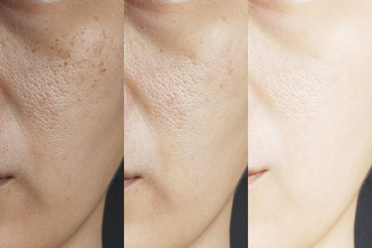 trattamentoi viso perfetto impurita wellnesssuites fondi
